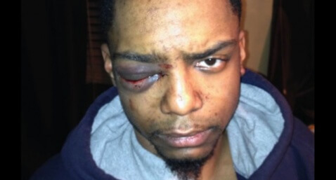 Taj_Patterson_Attacked_By_Jews_Then_Ignored_By_Attempted_Police_Coverup